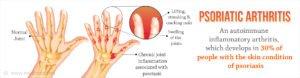 psoriatic-arthritis/fusion-chiro.com/DrCynthiaSeebacher